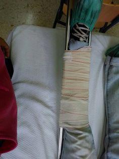 inmovilización pierna( tibia y peroné)
