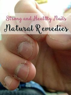 Natural Remedies to Get Healthy Nails