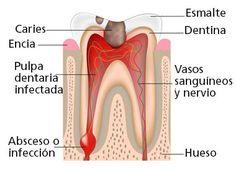 Clinica dental Llobell #periodoncia #implantesdentales #clinicadental