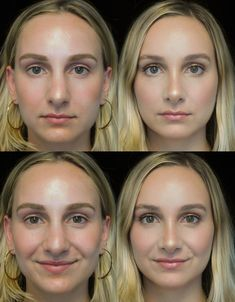 The Complete Guide to Rhinoplasty - Aesthetic&Botox&Rhinoplasty 2020 Rhinoplasty Surgery, Nose Surgery, Plastic Surgery Procedures, Cosmetic Procedures, Bulbous Nose, Rhinoplasty Before And After, Liposuction, Facial, Blog
