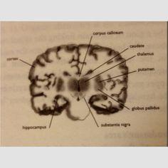 coronal cut (important landmarks--thalamus, basal ganglia [caudate nucleus, putamen, globus pallidus, substantia nigra], parts of limbic system, etc.)