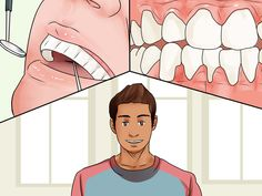 Periodontitis is a serious gum infection marked by painful, irritating symptoms that make it challenging to eat, swallow, and speak. Although prevention is important, . Dental Hygiene, Dental Health, Dental Care, Listerine, Causes Of Bad Breath, Health And Wellness, Health Tips, Best Dentist, Oil Pulling