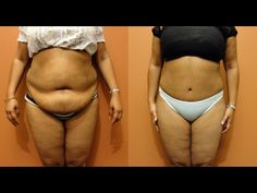 With just 2 cups a day, you're going to lose belly fat; Quick and easy - YouTube