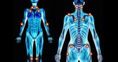 Many of those already suffering from the pain of fibromyalgia also suffer from myofascial pain syndrome. Myofascial pain syndrome is another form of chronic pain that can affect the entire body, pa… What Is Fibromyalgia, Fibromyalgia Pain Relief, Treating Fibromyalgia, Fibromyalgia Syndrome, Fibromyalgia Treatment, Chronic Fatigue Syndrome, Chronic Illness, Chronic Pain, Diagnosing Fibromyalgia