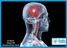 #DünyaMSBilinçlendirmeGünü Multiple skleroz, beyni ve omuriliği tutan özbağışıklık hastalığıdır.  Kısaca #MS olarak anılır. #Bağışıklık sistemindeki (immün sistem) savunma amaçlı gözelerin, nedeni daha anlaşılamamış bir şekilde, sinir hücrelerinin (nöronlar) çevresinde bulunan myelin kılıfını (buna bir nevi yağlı bir zar katmanı diyebiliriz.) vücuda yabancı bir bağıştıran olarak algılamasıyla yok etmeye çalışmasıdır. Bu durum da, çeşitli sinir sistemi belirtilerini ortaya çıkarır.