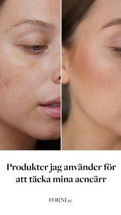 Har du haft svårt att hitta produkter som täcker acneärr och hyperpigmentering och som faktisk fungerar? Om inte, gå in och kika på Louise supertips!