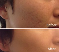Before and after images of Fraxel Dual Treatments.