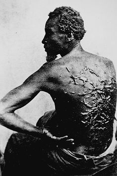 A black slave's back littered with scars from whipping. Can someone call himself human, doing this?