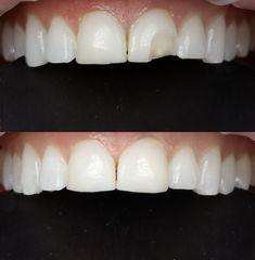 You have a chipped front tooth? No problemo. The everyday life of a cosmetic dentist. Composite Veneers, Front Teeth, Dental, Tooth, Facial, Cosmetics, Life, Beauty, Facial Treatment