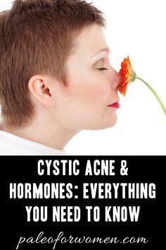 Cystic Acne & Hormones: Everything You Need To Know - Paleo for Women