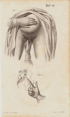 MATURE 1840 Antique PREGNANT print, PREGNANCY, obstetrics,mon engraving by TwoCatsAntiquePrints