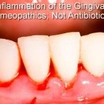 """What's a """"gingiva"""" and how does it get """"itis""""? Homeopathy for gingivitis"""