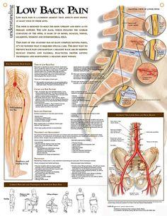Low Back Pain anatomy poster shows lower spine, pelvis tumors, infections, degenerative disease, ankylosing sponylitis...