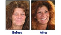 Before and After AvaDent Dentures