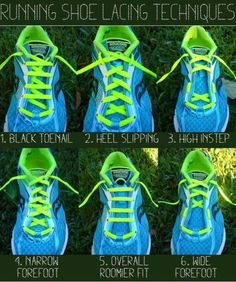 Customize your shoe lacing to fit your unique needs. I knew about the lacing technique for heel slipping, but not these others.