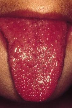 When Your Child's Tongue Looks Like a Strawberry. Think Kawasaki or