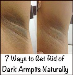 7 Ways to Get Rid of Dark Armpits Naturally - PositiveMed