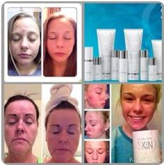 Check out the results from using the Herbalife SKIN line of skin care products! Click the link in our bio to see our skin care catalog. Herbalife Recipes, Herbalife Nutrition, Cellulite, Herbalife Results, Herbalife Distributor, Herbalife Weight Loss, International Health, Skin Line, Spa Party