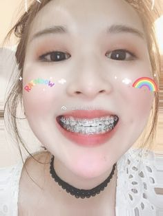 Braces Tips, Brace Face, Perfect Teeth, Faces, Girls, Beautiful, Dental Braces, Orthodontics, Teeth Braces