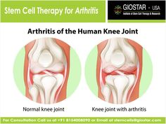 #Stem #Cell #Treatment for #Arthritis  TO Know more about the #arthritis treatment visit: http://www.giostar.com OR Email: stemcells@giostar.com