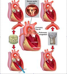 tavi | There are many patients with severe aortic stenosis and coexisting ...