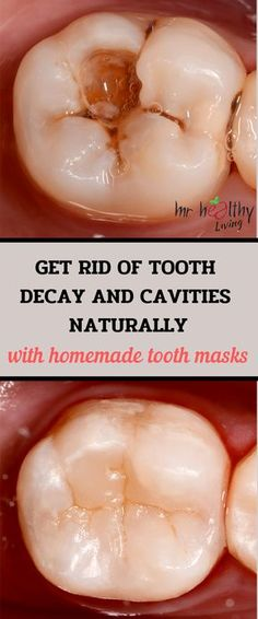 tooth teeth heal tooth decay tooth ache relief tooth cavity remedies tooth cavity remedies oral health oral health tooth cavities tooth cavities dentists tooth cavities oral health tooth cavities homemade toothpaste tooth cavities baking soda t Home Remedies Tooth Ache, Home Remedies For Cavities, Cure Tooth Ache, Teeth Health, Healthy Teeth, Oral Health, Homemade Toothpaste, Natural Toothpaste, Health Tips