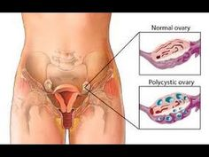 {VIDEO} PCOS – Polycystic Ovarian Syndrome and Nutritional Ketosis, , http://soulcysters.com/?p=7367
