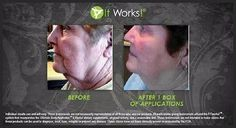 anewyouwithjenne | FACIAL Before and After How amazing!! To order a box of wraps please contact me today. http://healthynewlife.myitworks.com