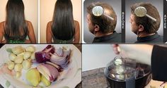 She Had Very Thin Hair But She Used This Ingredient And Got Thick Hair Within A Week