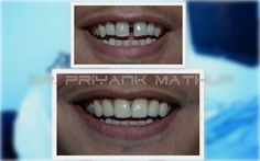 If you are looking for a once in a lifetime treatment to sort out all your cosmetic and functional dental issues, then ceramic caps done at Smilekraft Dentistry in Pune, India are the best option. For More Details Visit: http://www.smilekraftdentistry.com/our-forte/cosmetic-dentistry-pune/ceramic-caps-pune.html