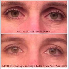 What could #AcuteCare do for you?   #RodanandFields #PrescriptionBased #ProactivDoctors #BeforeandAfter  sarahkwheeler.myrandf.com