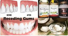 Healthy nutrition is the key tool in the struggle against the gum disease. Healing this condition is not essential for …