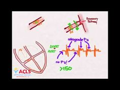 ACLS Whiteboards Narrow Rhythm Tachycardias Review by ACLS Certification Institute. More free videos can be found at http://www.aclscertification.com