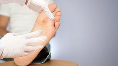A recent study suggests a possible link between Diabetic foot ulcers and diminished cognitive functions. Sepsis, Wound Care, Warts, Diabetes, Stav, Exceed, Healing, Animals, Pressure Ulcer