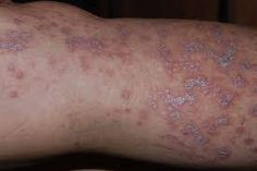 Lichen planus is an inflammatory situation that influences the skin and mucous crust. It often seems purplish, irritated, flattopped knocks..... http://www.naturalherbsclinic.com/blog/lichen-planus-an-inflammatory-skin-condition