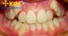 Niềng răng nanh thế nào an toàn không đau và không cần nhổ răng