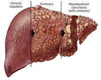 picture of hepatitis c - Yahoo Image Search Results Hepatitis C, Liver Cancer, Liver Disease, Signs And Symptoms, Nclex, Anatomy And Physiology, Nurse Life, Science Art, Ultrasound