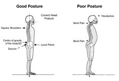Insights from a (Former) Traveling Occupational Therapist: 5 Exercises To Improve Your Posture Posture Fix, Bad Posture, Better Posture, Neck And Back Pain, Neck Pain, Whole Body Vibration, Yoga Anatomy, Perfect Posture, Psoas Muscle