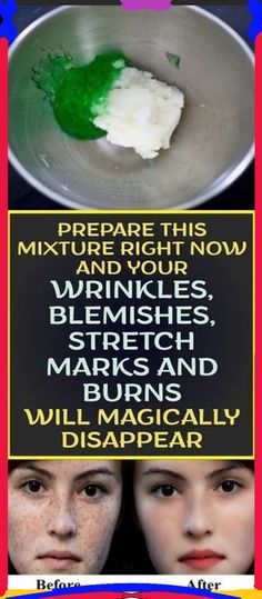Prepare This Mixture And Your Wrinkles, Blemishes, Stretch Marks And Burns Will Magically Disappear!