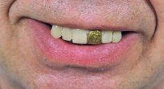 Teeth Glow Gold Miner Morris Costumes. $3.98