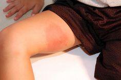 Las mordeduras y picaduras de insectos pueden causar una reacción cutánea inmediata.