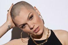 Mindennapi egészség és esztétika: A kopaszodás okai és ellenszere a FUE hajbeültetés