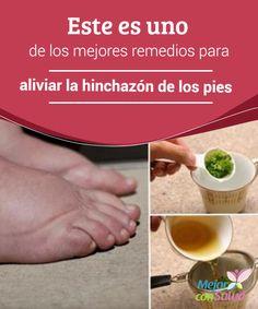 Este es uno de los mejores remedios para aliviar la hinchazón de los pies La…