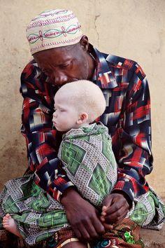 Tanzanian father caring for his beautiful son. Often albino children are the target of vicious mythical believes and only mothers protect them.