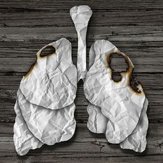 Find out if you need a lung cancer screening. Our lung cancer expert sits down and answers 5 of the most frequently asked lung cancer questions. Lung Cancer Facts, Holistic Treatment, Abdominal Pain, Health And Wellbeing, Cancer Awareness, Lunges, Breast Cancer, Air Signs, The Cure