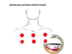 Easy Breathing Techniques When You're Dealing With Asthma -- Click image to read more details. Cupping Points, Hijama Cupping, Cupping Therapy, Acupuncture Points, Asthma Symptoms, Hijama Points, Epilepsy Treatment, Reiki, Massage