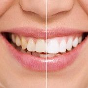 Natural teeth whitening dental canal,root canal treatment the start of tooth decay,dentist office gentle dental clinic. Skin Care Regimen, Skin Care Tips, French Beauty Secrets, Beautiful Teeth, Layers Of The Epidermis, Too Much Makeup, Smile Design, Natural Teeth Whitening, Dental Care
