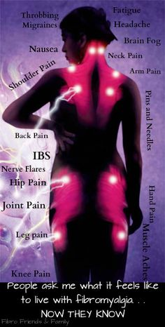 Fibromyalgia...where the pain is