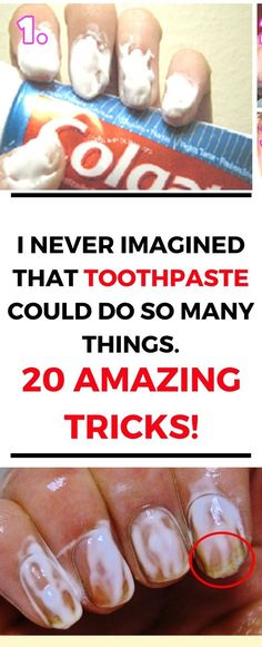 Did you know that toothpaste can help you do so much more than just cleaning your teeth? Continue reading the article below to learn 20 amazing toothpaste tricks!