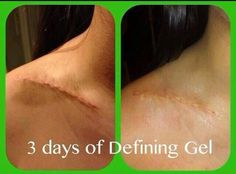 Have that nasty scar??? Want it gone?? Try It Works defining gel it's magic in a bottle!  jennwise.myitworks.com